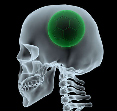 playoff: X-ray of a head with soccer ball instead of a brain, 3d illustration