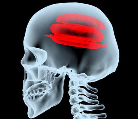fast food: Radiograf�a de una cabeza con la hamburguesa en lugar del cerebro, ilustraci�n 3d