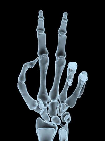 desprecio: Radiograf�a de la toma de la mano gesto de la victoria, ilustraci�n 3d