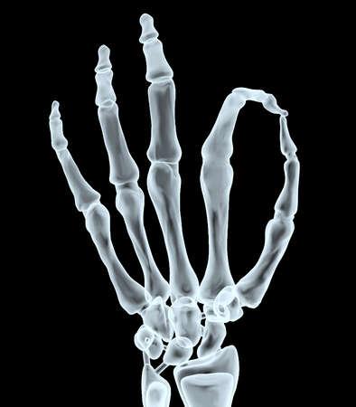 desprecio: Radiografía de la mano haciendo el gesto de ok, ilustración 3d