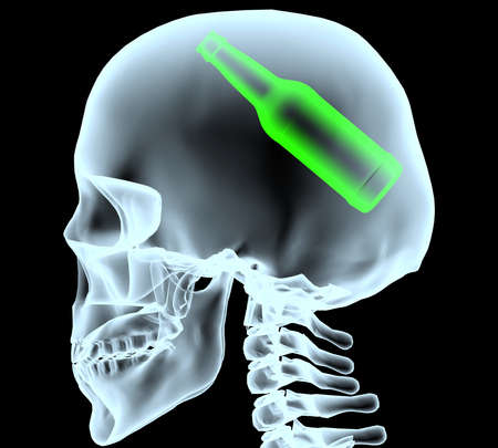 radiogram: X-ray of a head with beer bottle instead of the brain, 3d illustration