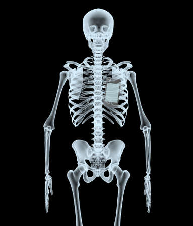skeleton X-Ray displaying smartphone. isolated 3d illustration on a black background Stock Photo