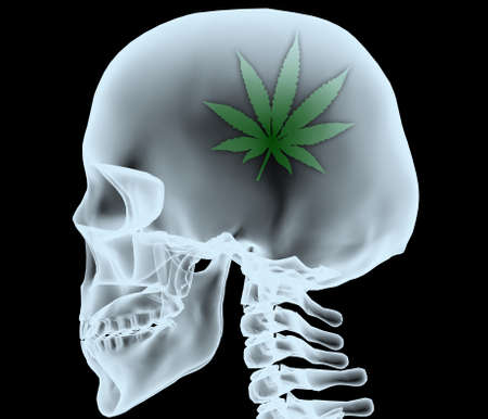 X-ray of a head with the marijuana leaf instead of the brain, 3d illustration Foto de archivo - 110764902