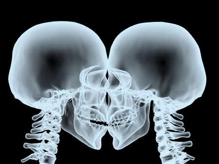 X-Ray kiss close up, isolated on black 3d illustration Stockfoto - 116908067