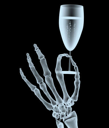 x-ray hand with glass of wine isolated on black background, 3d illustration