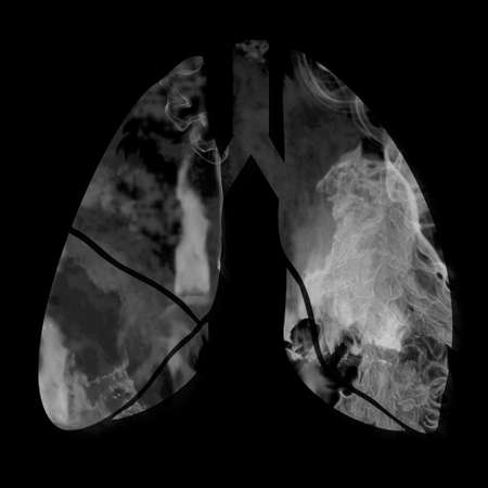lungs silhouette with smoke inside, 3d illustration