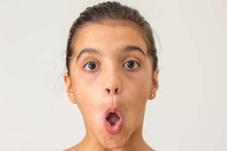 girl mouth: Open mouth girl Stock Photo
