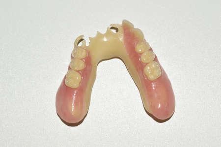 resin: Pr?tesis con dientes de resina, modelo del elenco de acetal Foto de archivo