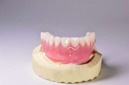 Upper dentures with special attacks, on test pattern in plaster photo