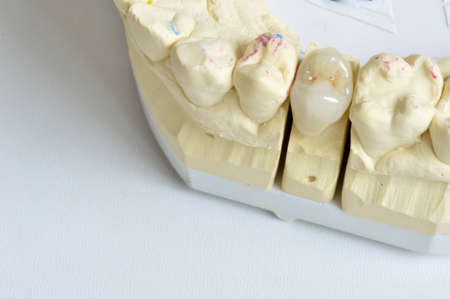 fused: Close-up of fused ceramic, an element premolar Stock Photo