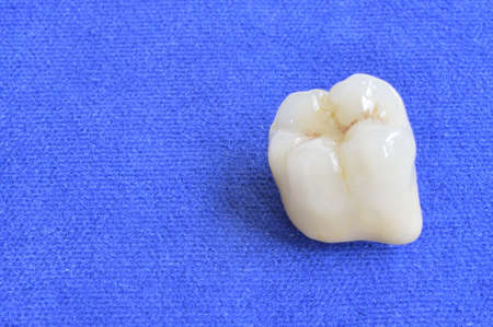 fused: Close-up of fused ceramic, one molar tooth Stock Photo