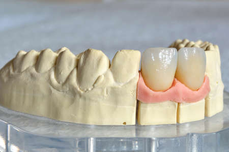 Dental prosthesis, upper incisors stratified in  lithium disilicate  photo