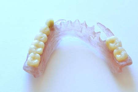 monomer: Removable dentures flexible, devoid of nylon, hypoallergenic exempt from monomer