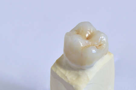 particularly: Molar zirconium, ceramic coated in multiple layers, particular of the working Stock Photo