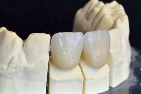 Upper incisors zirconium, particular of the working Multilayer Ceramic  Stock Photo