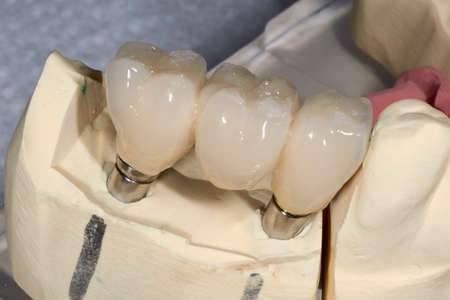 implants: Detail of the layering ceramic dental implant, crown three elements on zirconium oxide