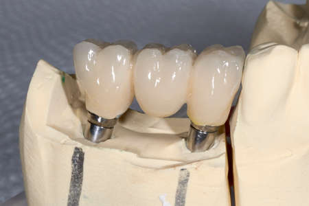 prosthetics: Detail of the layering ceramic dental implant, crown three elements on zirconium oxide