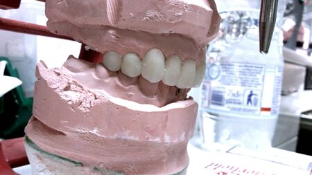 construction: dental prosthesis construction