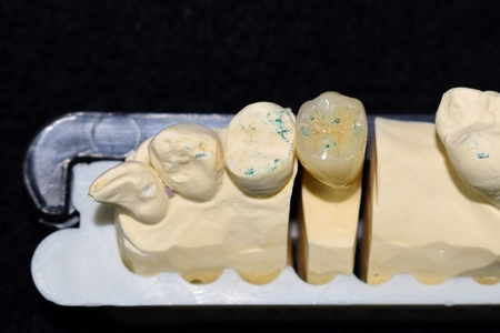 Metal crown and ceramic, molar structure, chewing control with reflection color