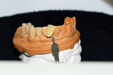 Dental crown made of metal and ceramic to four elements, color control and processing