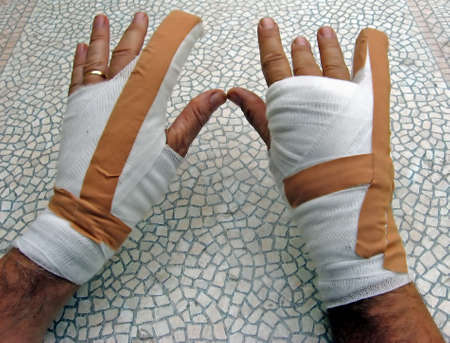 dislocation: hands breaking of bones wrapped in bandages and plasters Stock Photo