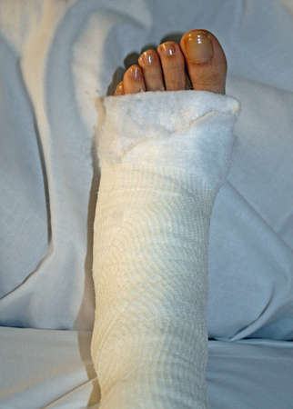 foot and leg bandaged after surgery in hospital Editorial