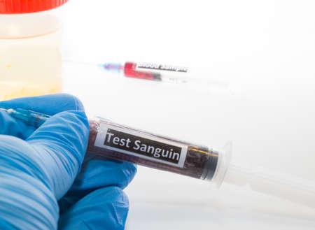 urinalysis: medico con la siringa con il sangue per le analisi del sangue e delle urine tubo Archivio Fotografico