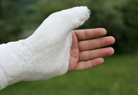 hand hurt with medical plaster cast after breaking the phalanx of the thumb