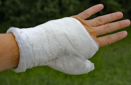 injured hand with the cast after the fracture of the thumb phalanx Stock Photo