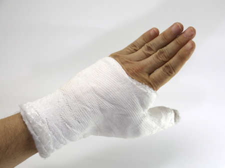 Hand cast fractured after a serious car accident Stock Photo