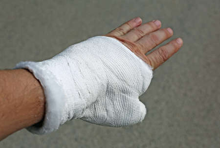 hand with plaster cast after breaking the phalanx