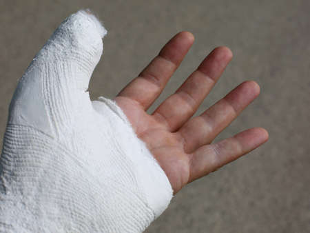 hand finger plastered after a fracture due to a fall on  bicycle