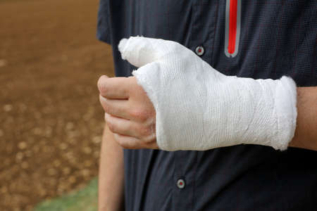 Hand of a person with the thumb and wrist completely plastered after the fracture of the bones