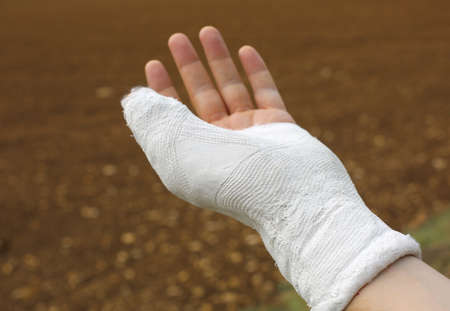 Hand plastering with thumb wrapped by plaster after injury
