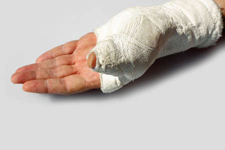 fractured hand of a man  with the orthopedic cast after the accident on white background