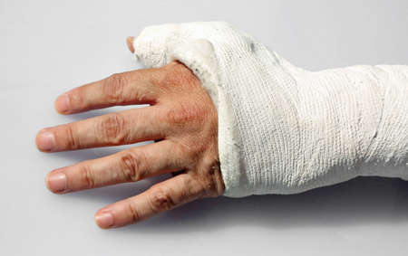 fractured hand with the white orthopedic cast after the accident