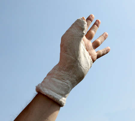 the fractured hand and the plaster cast at the hospital with the thumb up and the pale blue sky background Foto de archivo