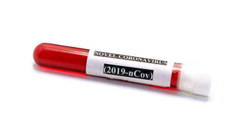 white background and test tube with blood for checking the deadly coronavirus in chemical analysis laboratory