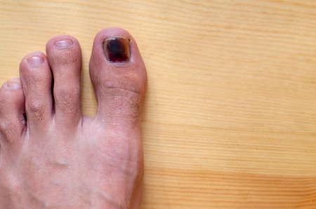 Mans foot on wooden surface background. Hematoma on leg.
