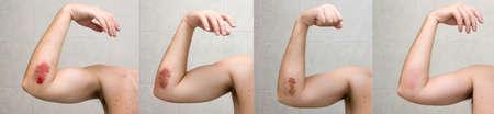 elleboog: Wond genezings proces XXL. Pijnlijke blauwe plek van elleboog schot gedurende drie weken