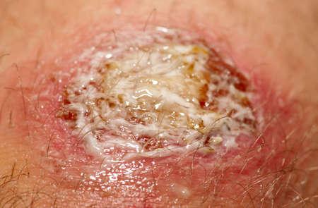 hemorragias: Cubierto de heridas con el gel antibacteriano. No es un maquillaje Foto de archivo