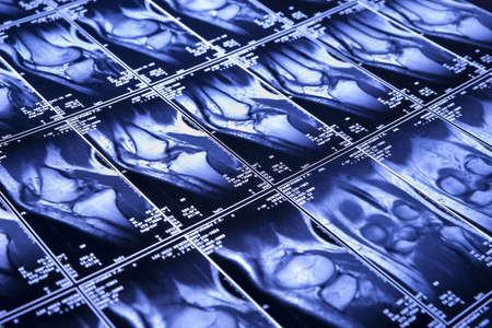 My knee MRI - sport trauma, damage of cross-shaped ligaments photo