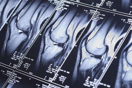 Mi rodilla RM - traumatismos del deporte, el daño de los ligamentos en forma de cruz