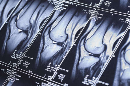 My knee MRI - sport trauma, damage of cross-shaped ligaments Stock Photo - 5614483