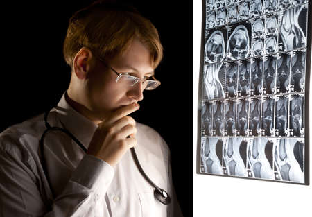 Young puzzled doctor thinking about the diagnosis photo