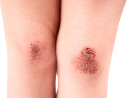 Scraped knees of a little girl on white background photo