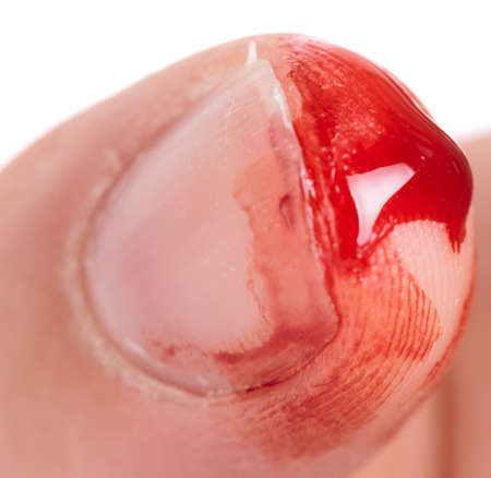 cut and blood: Bleeding from the cut finger, reality shot