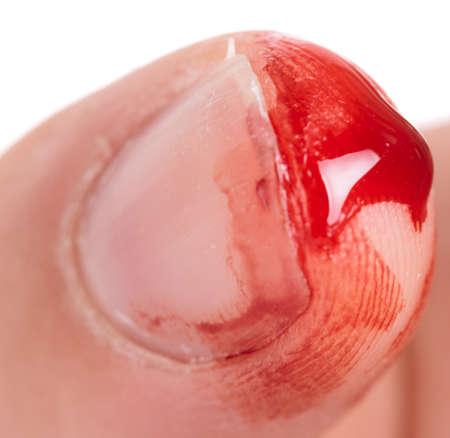 sharp: Bleeding from the cut finger, reality shot
