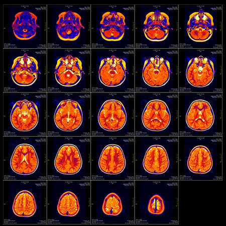 mri scan: Real brain MRI slide of a girl. Patients and clinics names cloned out, minimal editing to save fine details Stock Photo