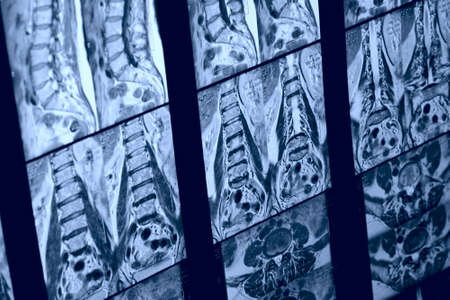 Real MRI scan of human spine, patients data cloned out photo